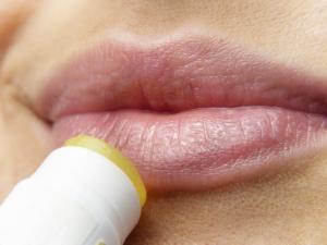 口唇ヘルペスのかさぶたはどうすればいいの??早く綺麗に治す方法!